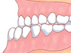 前歯の反対咬合の治療例