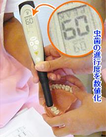 光学式虫歯発見器:新機種メーカー説明会