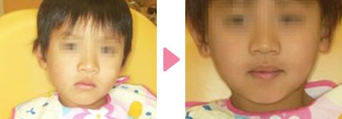 子どもの反対咬合(受け口)の早期初期治療