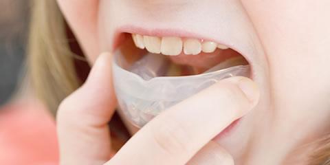 マルチファミリーを使用した子供の上顎前突(出っ歯)の早期治療