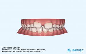 インビザライン・ファースト3D治療計画 大田区蒲田の小児矯正