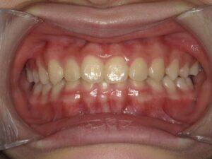 症例2(7歳女の子)(歯のデコボコ)