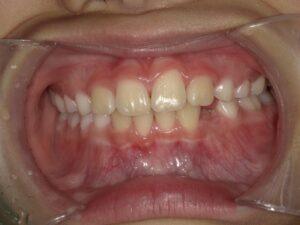 症例4(8歳男の子)(反対咬合)(歯がガタガタ)
