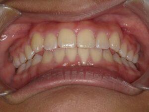 症例5(8歳女の子)(反対咬合)(歯がガタガタ)