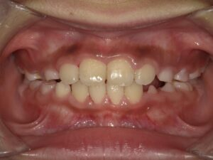 症例7(6歳男の子)(歯がガタガタ)