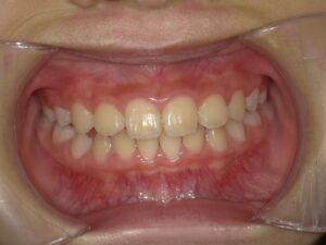 症例6(7歳女の子)(歯がガタガタ)